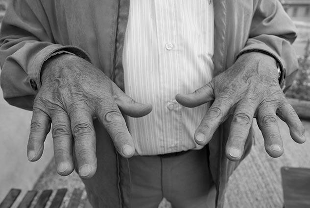 Las manos torturadas de Camilo de Dios | Foto: CARLOS SUÁREZ