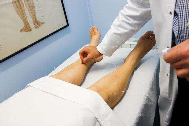 Victoria acude a una sesión semanal de acunpuntura de 45 minutos.
